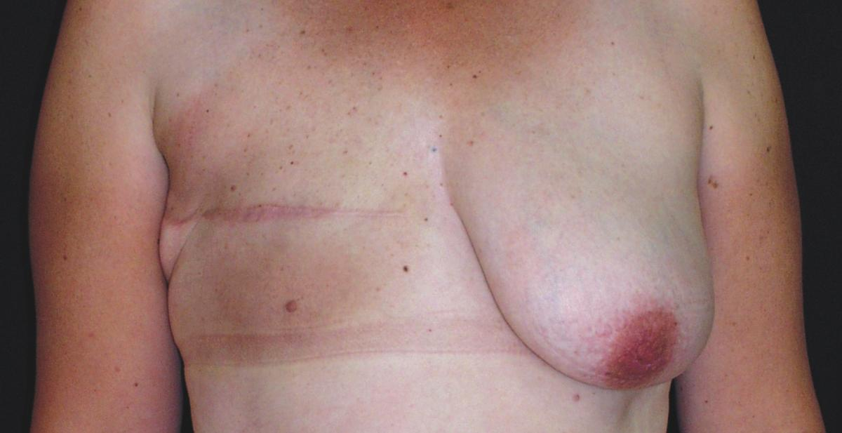 Before and After Mastectomy Reconstruction Photo