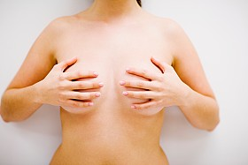preventative mastectomy